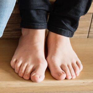 Jalkaongelmat