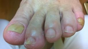Kynsisieni jalan kynsien ongelmana